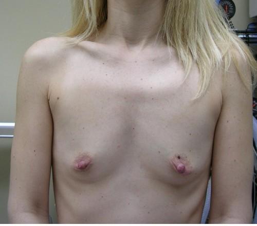 sad tits